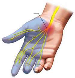 http://www.mycarpaltunnel.com/wp-content/uploads/2014/10/Carpal-Tunnel-Syndrome-Right-Hand.jpeg