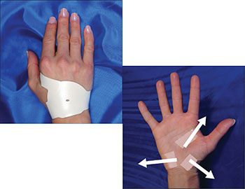 applying-the-carpal-solution