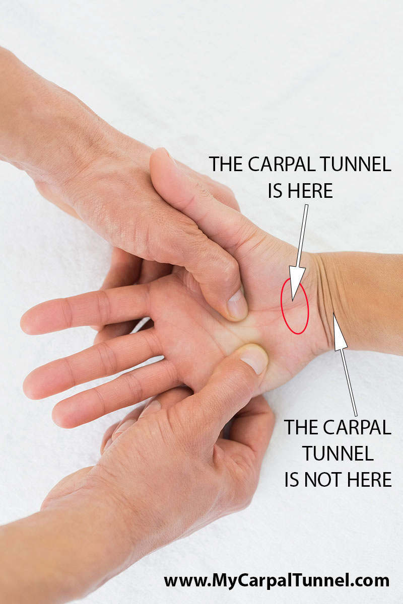 the carpal tunnel is located at the base of the hand, just above the wrist between the two largest muscles of the hand.