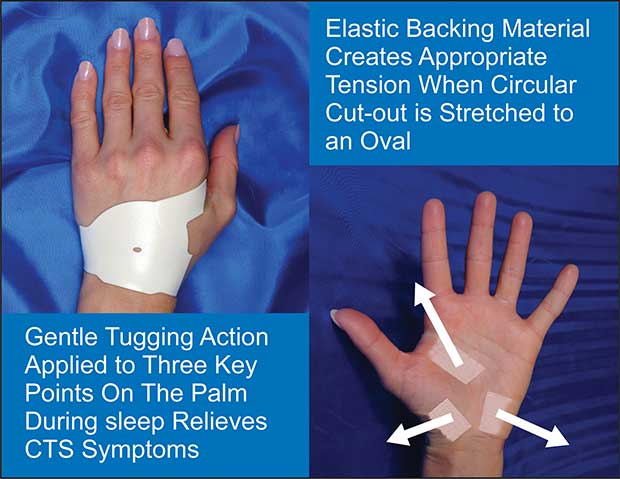 discover how the carpal solution works