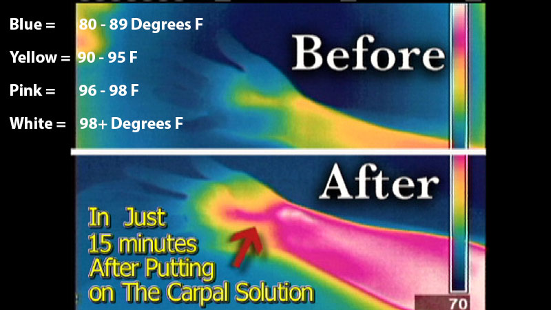 thermal imaging of how well the carpal solution works to cure carpal tunnel syndrome
