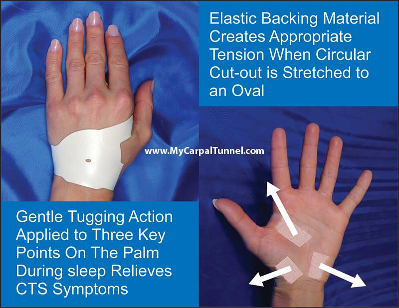 The Carpal Solution quickly gets the CTS sufferer back to their active life style, with little down time and no steroids shots, or surgery