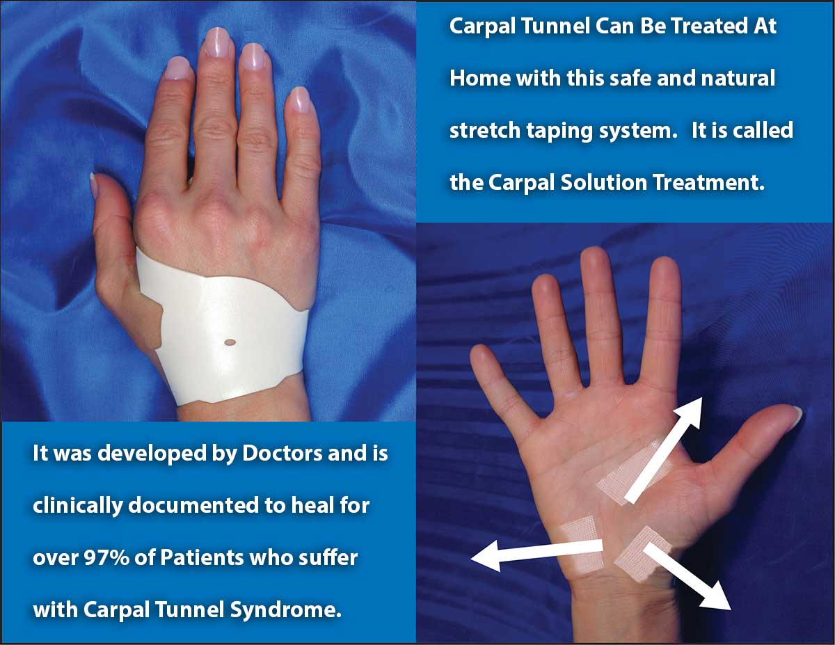 carpal tunnel can be treated at home with a safe and natural stretch taping system