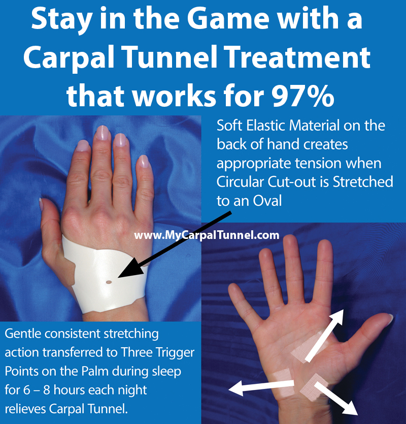 Stay in the Game with a Carpal Tunnel Treatment that works for 97%