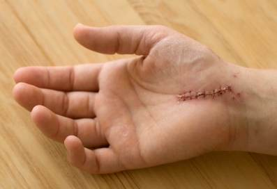 scar tissue and carpal tunnel surgery