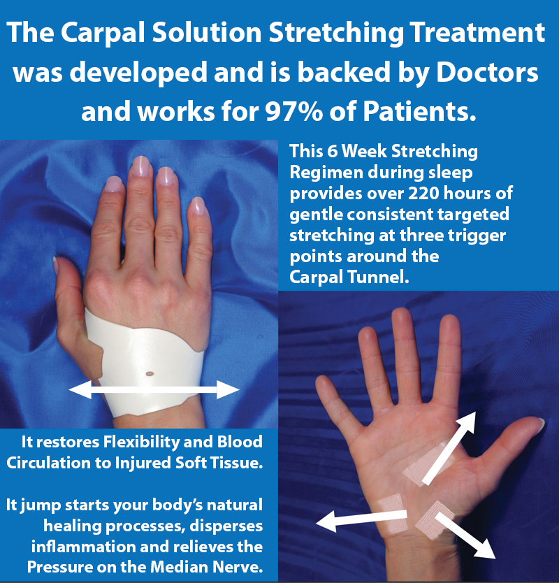 a carpal tunnel stretching treatment developed by doctors