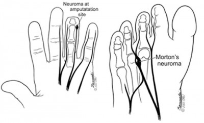 neuroma from carpal tunnel surgery finger amputation or in the foot can be painful